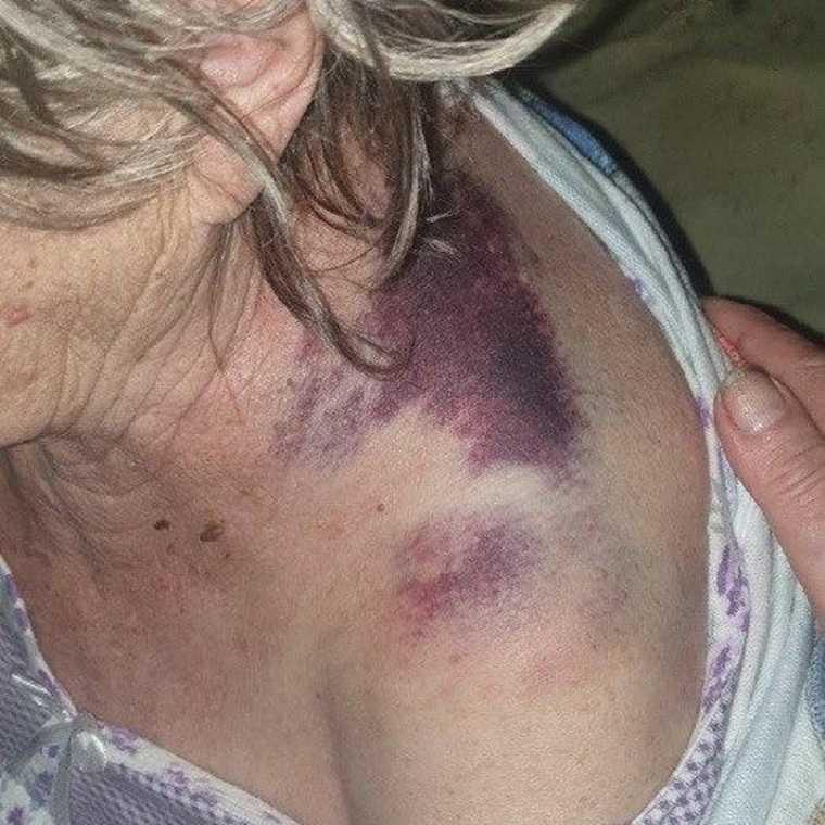 Свердловскую пенсионерку избили во время лечения от коронавируса. Фото
